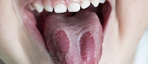 terapias-naturales-julian-diaz-tratamiento-cura-candidiasis-1-6